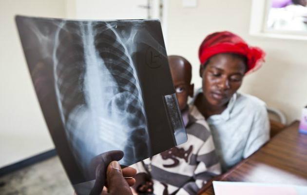 International Tuberkulosedag: Tuberkulose opdages ikke hos små børn